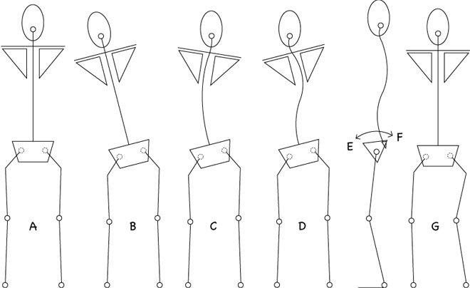 tekeningen van bekkenscheefstand