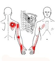 triggerpoint dat afgeleide pijn veroorzaakt in arm